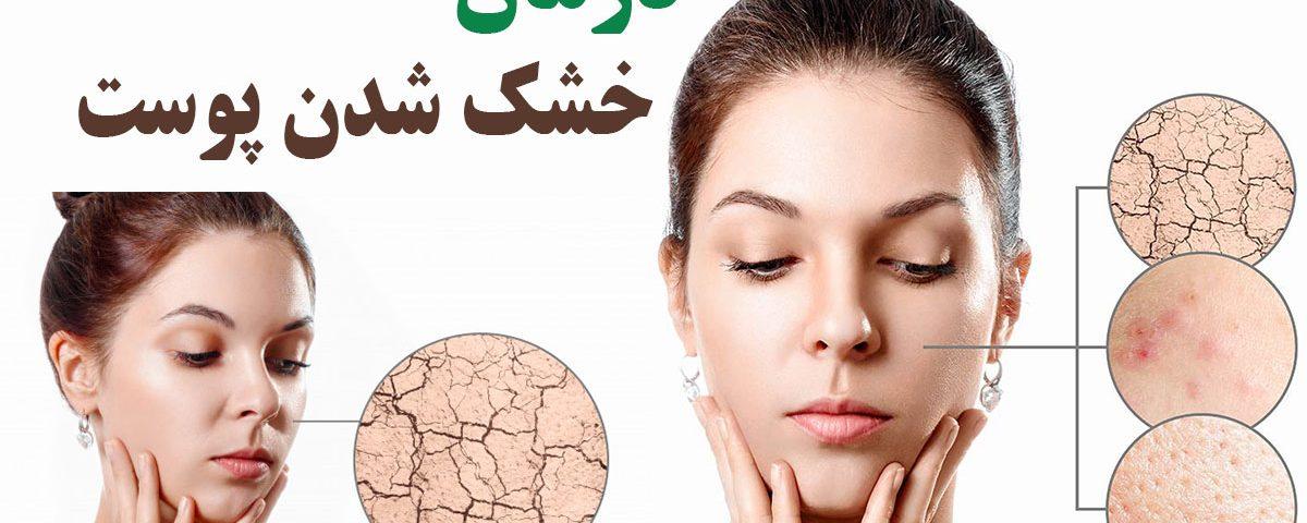 خشک شدن پوست