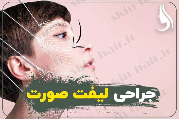 جراحی-لیفت-صورت