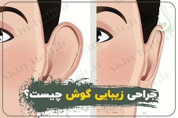 جراحی زیبایی گوش چیست؟
