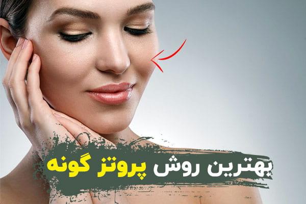 The best method of cheek prosthesis