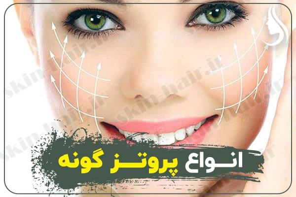 Types of cheek prostheses