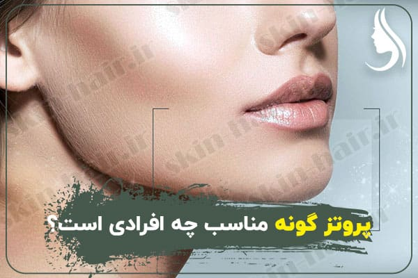 Who is the right cheek prosthesis